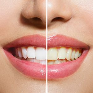 Teeth Whitening at Town & Country Smiles
